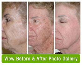 Before and after Omnilux foto facial