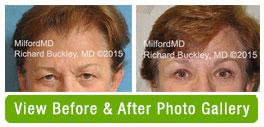 Blepharoplasty - Surgical Eyelid Lift