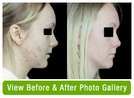 Before and after facial acne treatment with omnilux blue