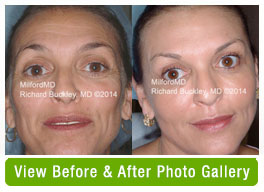Liquid Facelift Before & After Gallery