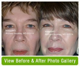Before and after fat transfer to the face