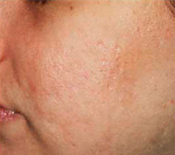 Before SmoothBeam™ Acne Scar Treatment