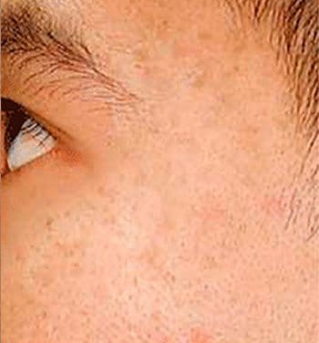 After SmoothBeam™ Acne Scar Treatment