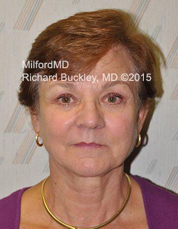 After Eyelid Lift (Blepharoplasty)