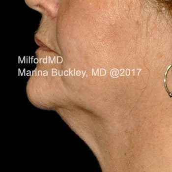 After CoolSculpting® Neck