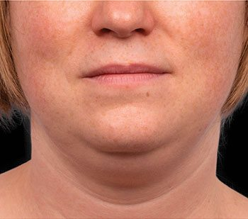Before CoolSculpting® Neck