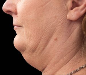Before CoolSculpting Neck