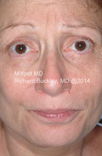 Before Facelift with Fat Transfer and Neck Lift Front View