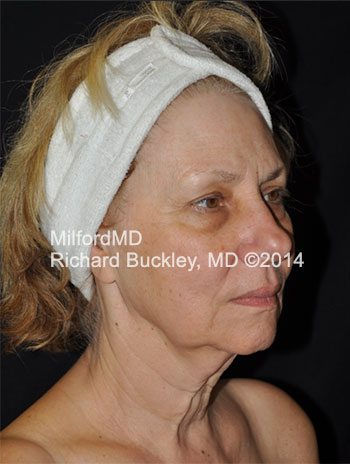 Before Liposuction Neck and Face Lift