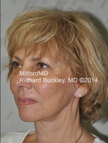 After Liposuction Neck and Face Lift