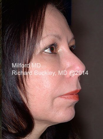 After Facelift with Fat Transfer and Neck Lift Side View
