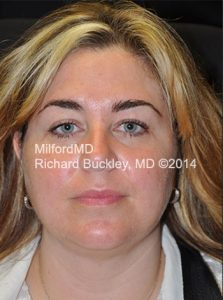 After Liposuction Neck and Jowl Lift