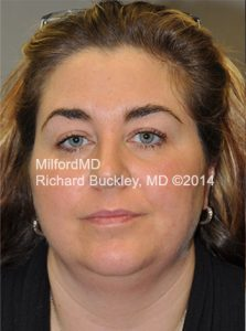 Before Liposuction Neck and Jowl Lift