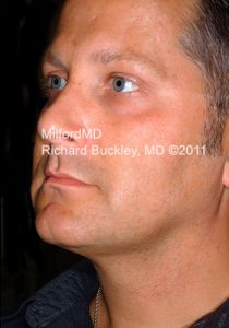 After Liposuction Male Neck and Face Lift