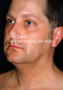 Before Liposuction Male Neck and Face Lift