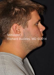 After LipoSculpture Male Neck Lift