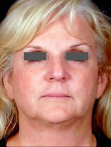 Before PrecisionTX Laser Neck Lift