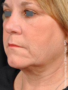 After PrecisionTX Laser Neck Lift