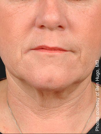 After PrecisionTx™ Laser Neck Lift