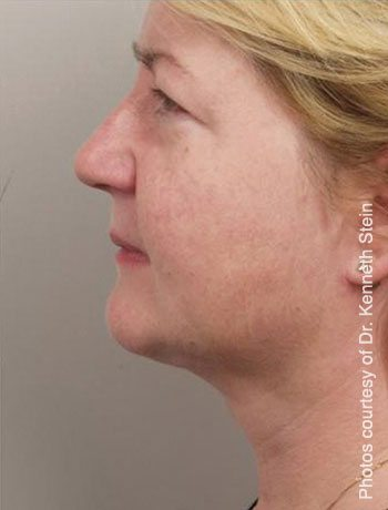 After SmartLipo Triplex Neck Lift