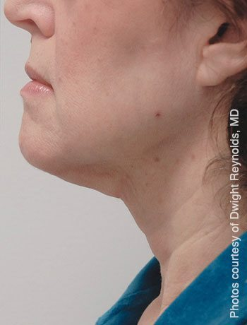 After SmartLipo™ Triplex Neck Lift