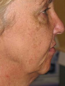 Before SmartLipo Triplex Neck Lift
