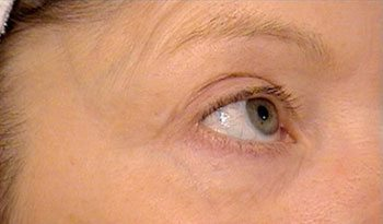 After SmoothBeam™ Wrinkle Reduction