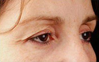 Before Thermage® Brow Lift