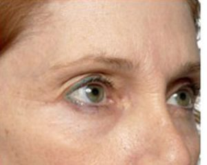 Before Thermage Brow Lift