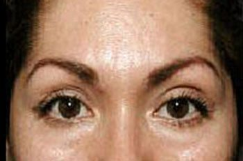 After Thermage® Brow Lift