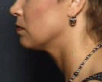 After Thermage® Jowls & Neck Lift