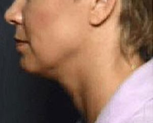 Before Thermage® Jowls & Neck Lift