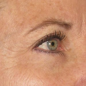 After Ultherapy Brow Lift