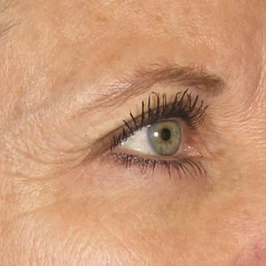 Before Ultherapy Brow Lift