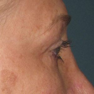 Before® Ultherapy Brow Lift
