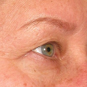 Before Ultherapy® Brow Lift