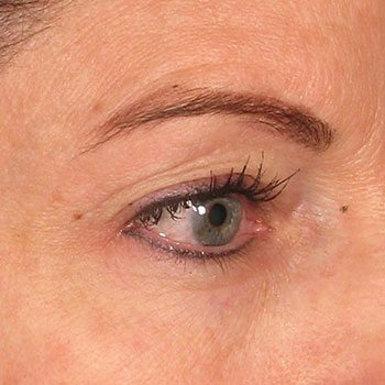 After Ultherapy® Brow Lift