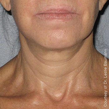 After Ultherapy® Neck Lift
