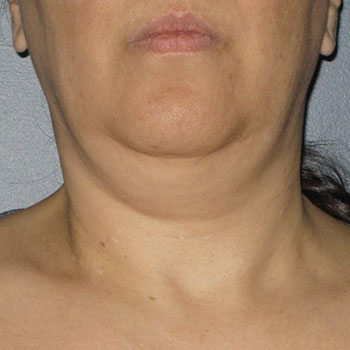 Before Ultherapy® Neck Lift
