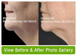Before and After Coolsculpting Neck Fat