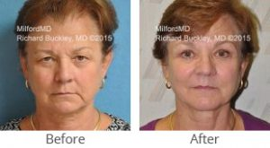 Blepharoplasty Before & After Case #35794