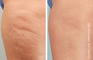 cellulaze cellulite laser treatment
