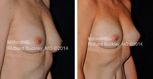 Before & After Breast Augmentation with Fat