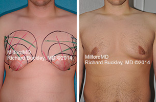 Before & After Gynecomastia Surgery in Milford PA