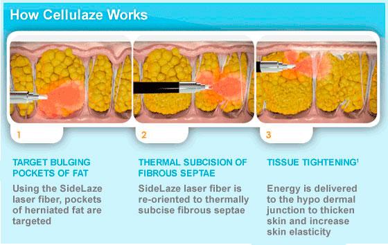 How Cellulaze Works