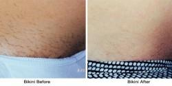 bikini_before-after