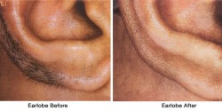 Earlobe_Before-after