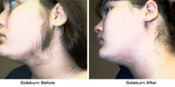 face-sideburn-before-after