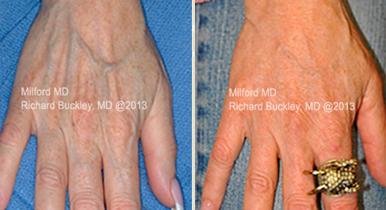 hand rejuvenation fat transfer to hands, Hand Rejuvenation