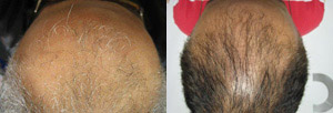 Hair Restoration Scranton PA